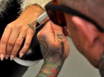 Hvor kan jeg få fjernet min tatovering?