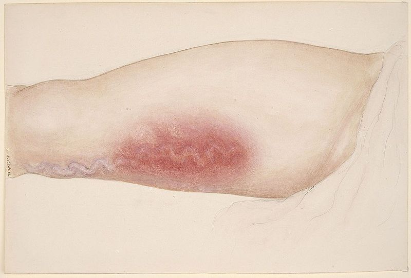 Varicose_vein_affecting_the_leg_Wellcome_L0061667